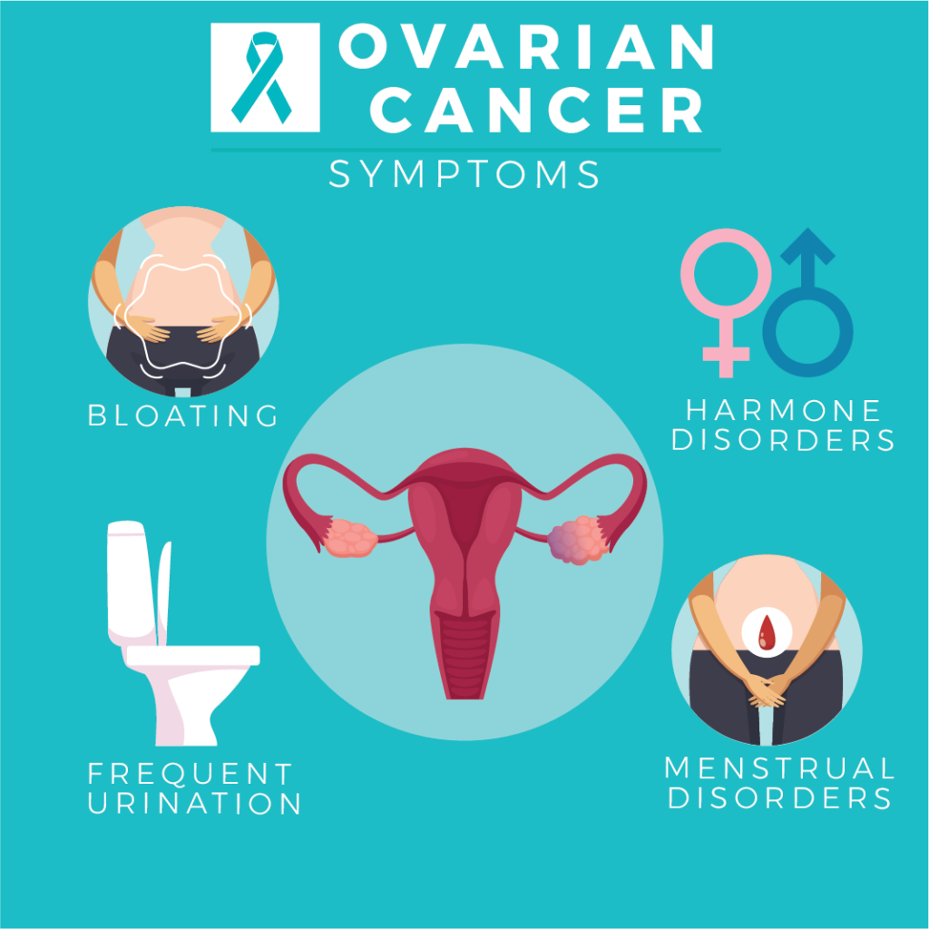 Ovarian Cancer Symptoms include: Bloating, Harmone Disorders, Frequent Urination, and Menstrual Disorders.